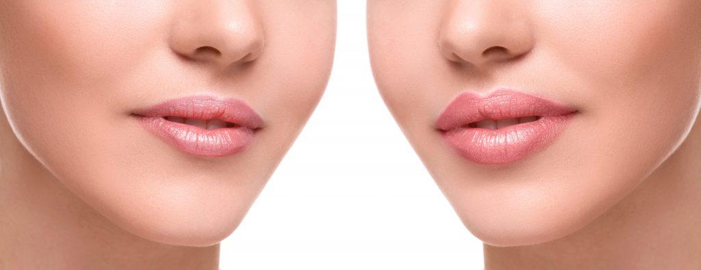 lip injections medina