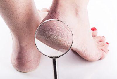 Gout Vs. Cracked Heels